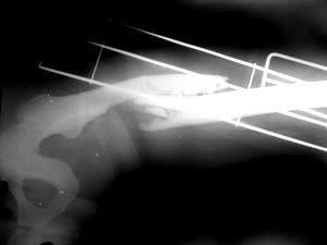 Foto: Femur fraturado no raio x